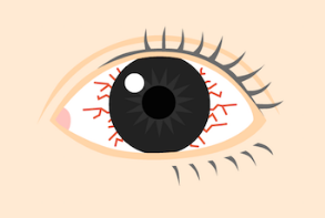 目の充血治し方web 白目が真っ赤 病気や原因を理解し症状を治す